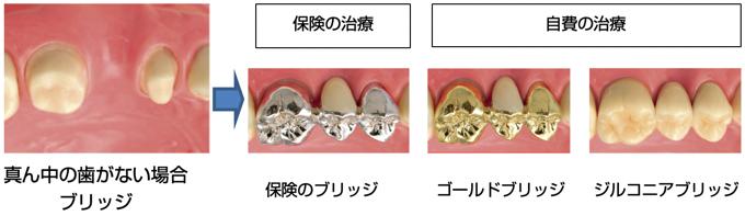 ん中の歯がない場合 ブリッジ