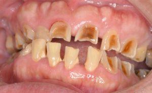 酸で溶けた歯