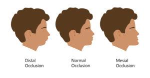 骨格的な咬合の3つの分類