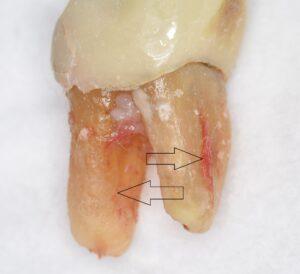 破折歯根の抜去された歯(角度を変えた位置からのもの)
