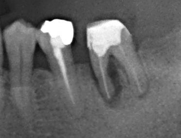 破折歯根のレントゲン写真